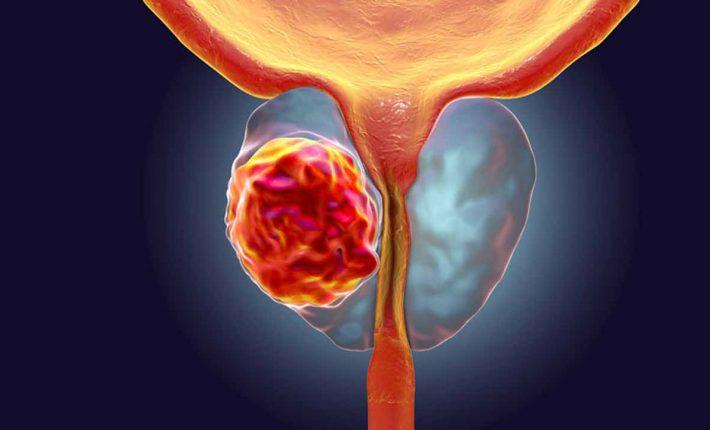 Prostatitis - Síntomas y causas - Prostaffect сumpără
